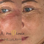 microneedling - philings